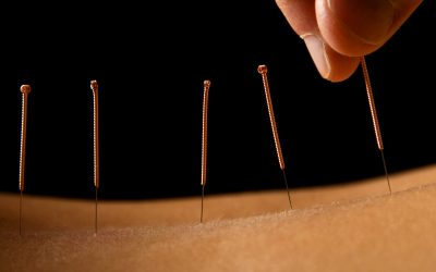 דיקור סיני – ACUPUNCTURE-שמוליק ריש-עוסה הנפלאות